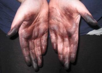 Краска для волос окрасила руки
