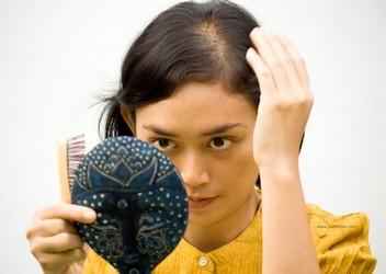 Сильное выпадение волос и облысение